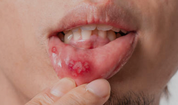 Mouth Ulcer - Home Remedy